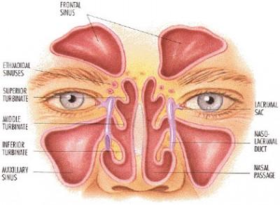 Chapter-452-Sinus-resdung-punca-rawatan