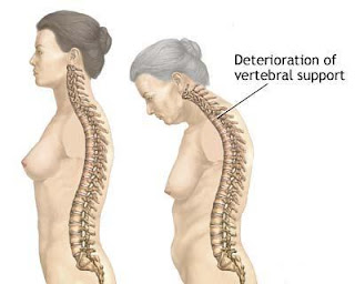 Kesan osteoporosis apabila meningkat usia.