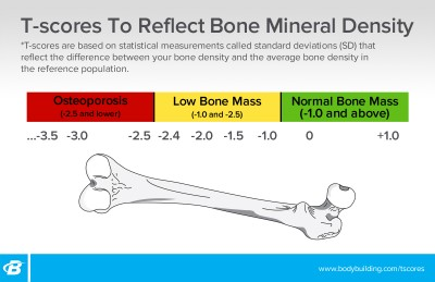 Skala Kesihatan Tulang